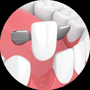 Dental Bridge Dublin