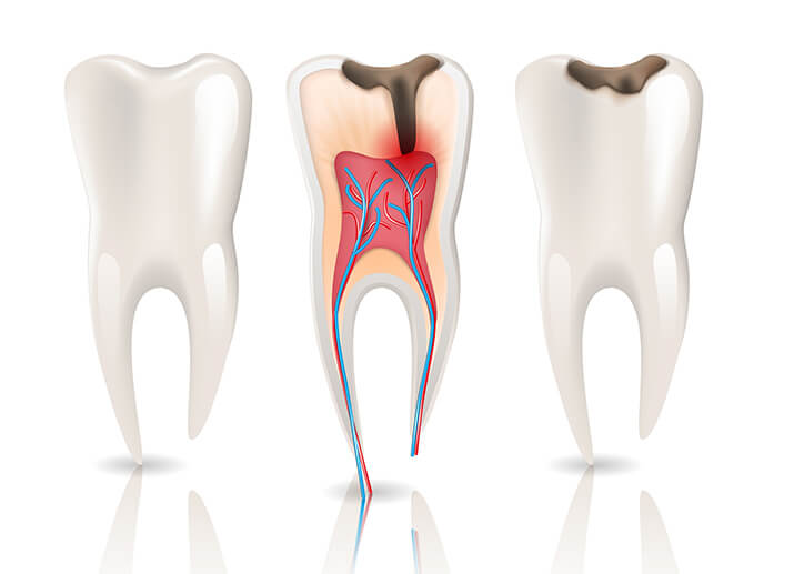 Root Canal treatment in dublin
