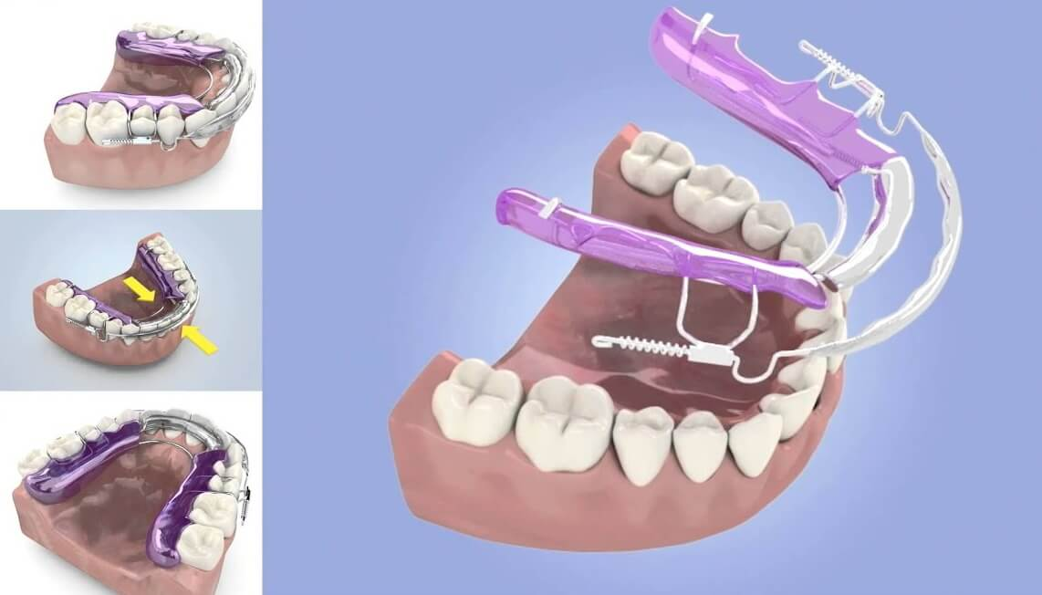 what is an inman aligner